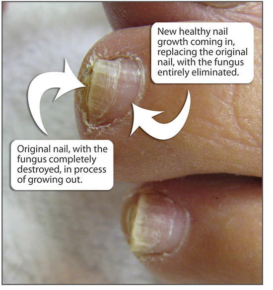 Laser toenail fungus treatment in selden ny our new extraordinary approach to fighting toenail fungus is unique solutioingenieria Gallery