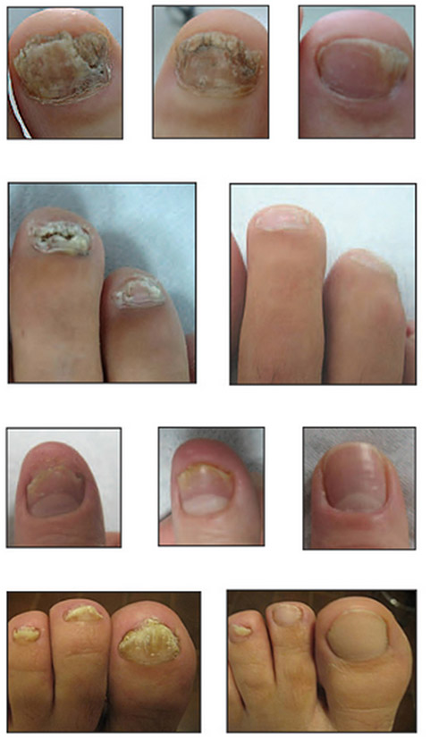 how to tell if you have toe fungus